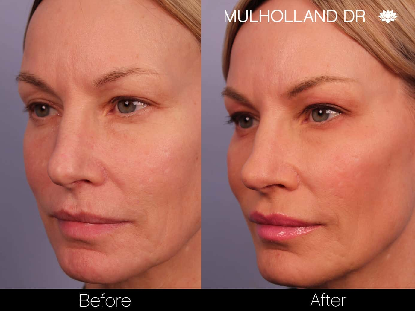 Non-Surgical Facelift - Before and After Gallery – Photo 3