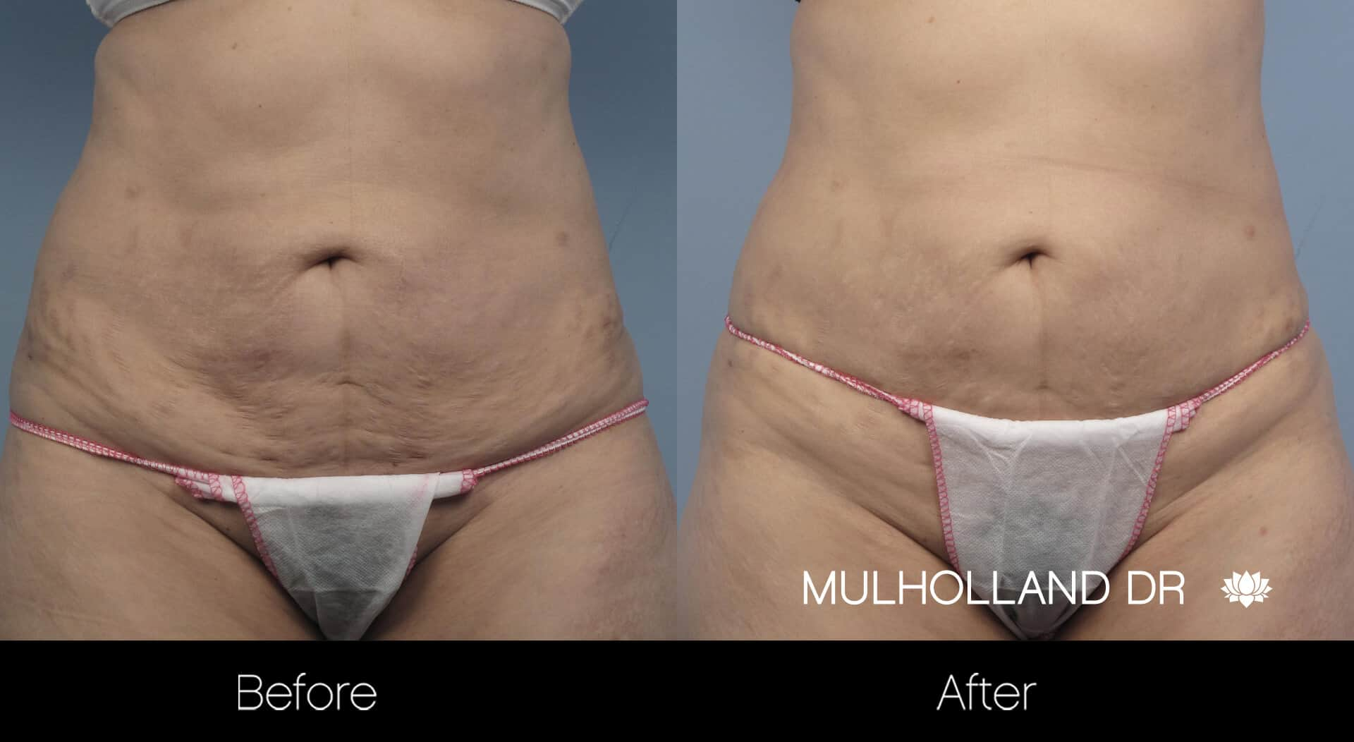 Non-Surgical Liposuction - Before and After Gallery – Photo 4