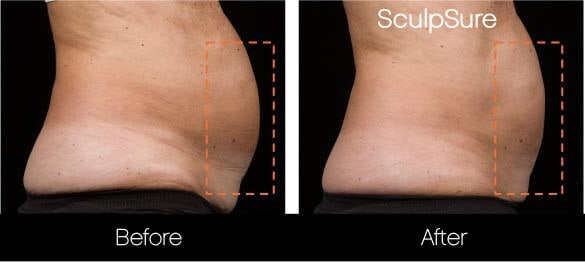 SculpSure - Before and After Gallery – Photo 4