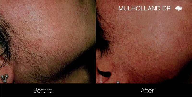 Laser Hair Removal - Patient Before and After Gallery – Photo 2