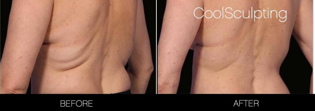 CoolSculpting - Before and After Gallery – Photo 3