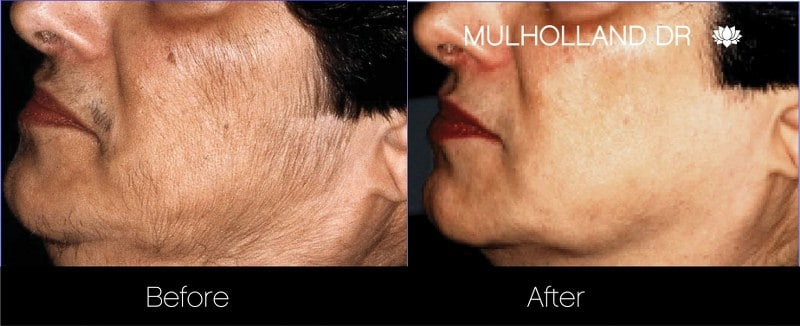 Laser Hair Removal - Patient Before and After Gallery – Photo 3