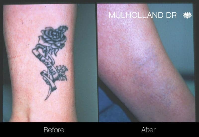 Laser Tattoo Removal - Before and After Gallery – Photo 3