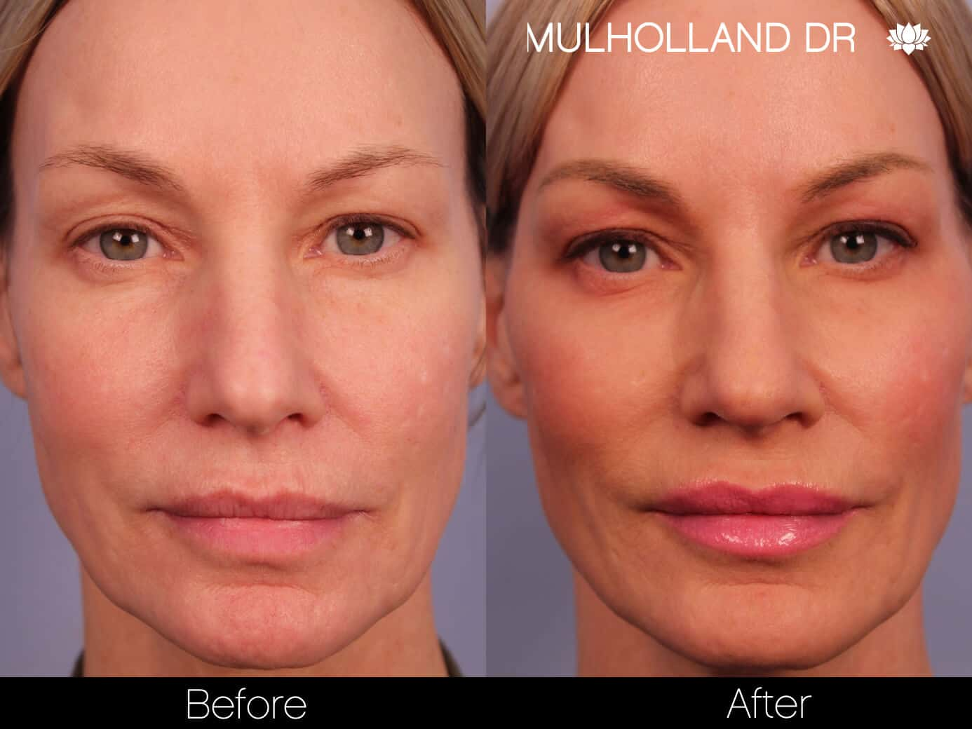 Rosacea Treatment - Patient Before and After Gallery – Photo 4