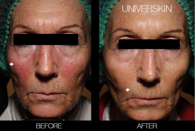 Universkin - Before and After Gallery – Photo 4