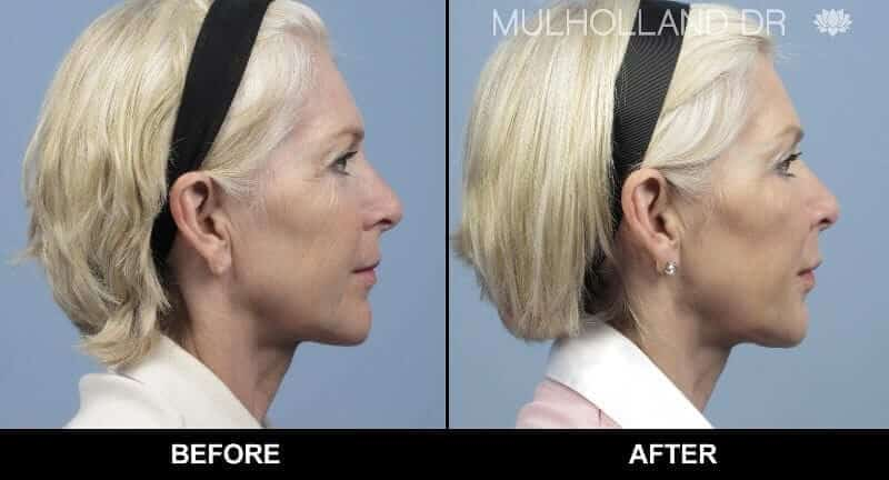 Non-Surgical Facelift - Before and After Gallery – Photo 4