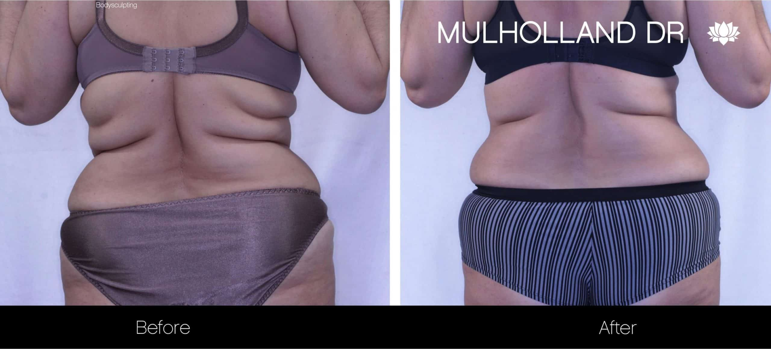 Non-Surgical Liposuction - Before and After Gallery – Photo 6