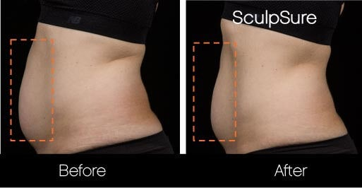 SculpSure - Before and After Gallery – Photo 5