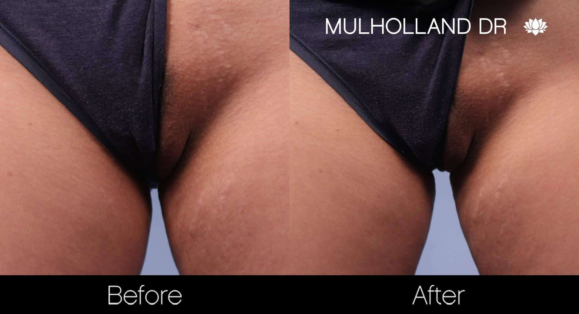 Bikini & Brazilian Laser Hair Removal - Patient Before and After Gallery – Photo 5