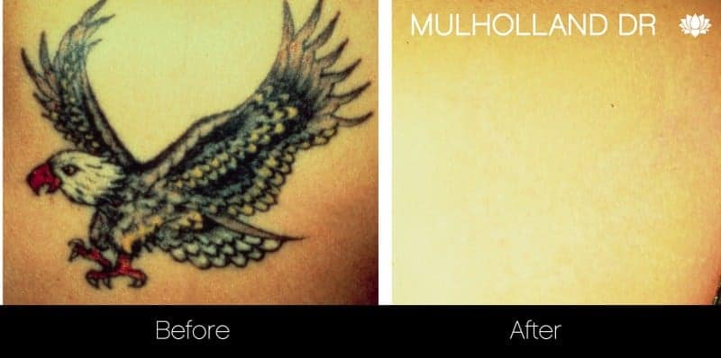Laser Tattoo Removal - Before and After Gallery – Photo 4