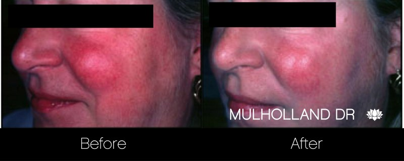 Rosacea Treatment - Patient Before and After Gallery – Photo 6