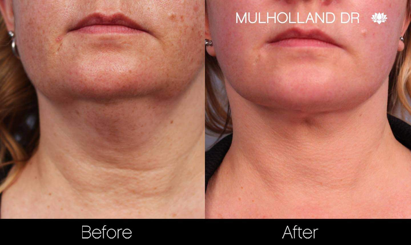 Universkin - Before and After Gallery – Photo 5