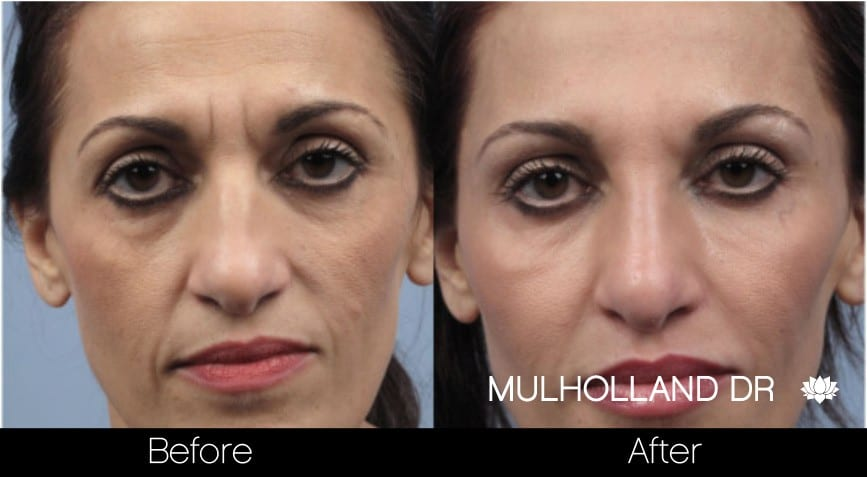 Botox Injectable - Before and After Gallery – Photo 5