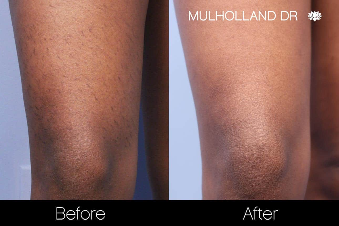 Laser Hair Removal - Patient Before and After Gallery – Photo 5