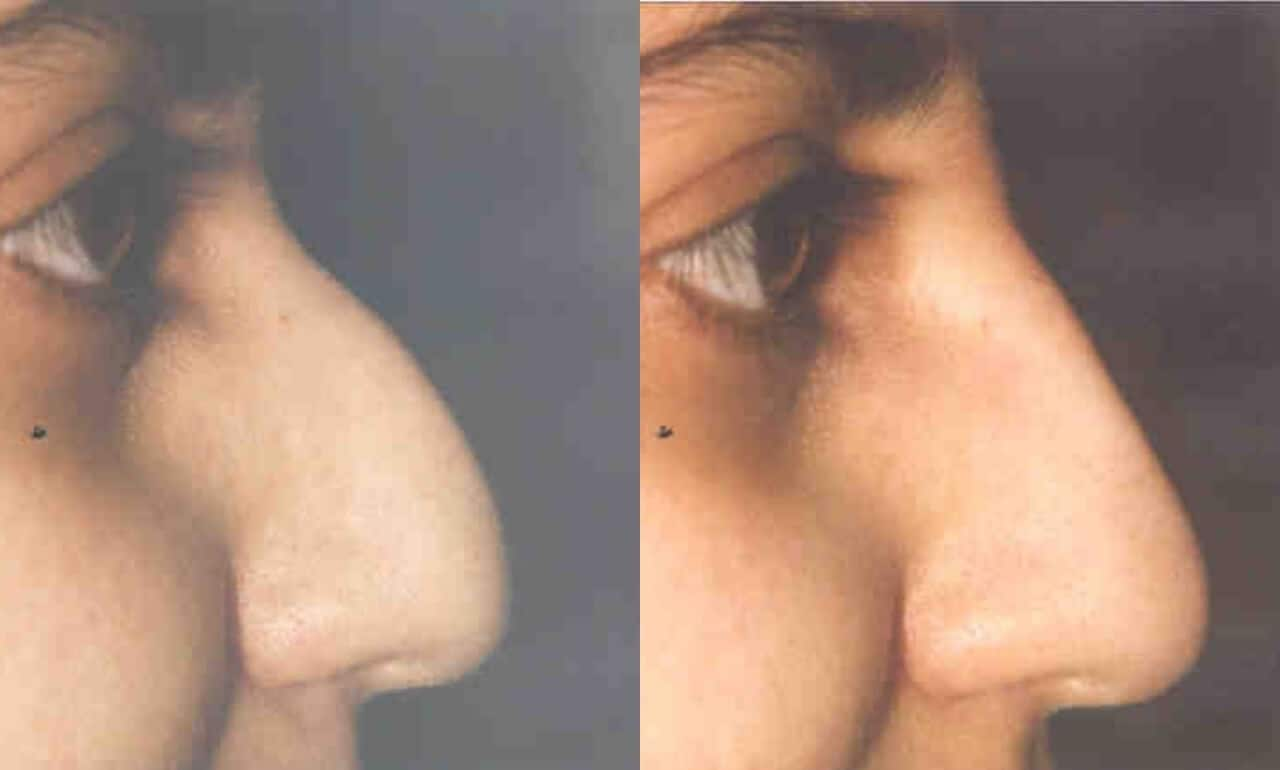 5 Minute Nose Job - Before and After Gallery – Photo 6