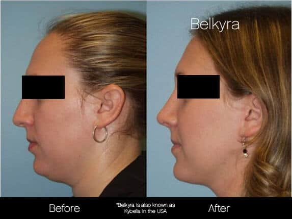 Belkyra - Before and After Gallery – Photo 8