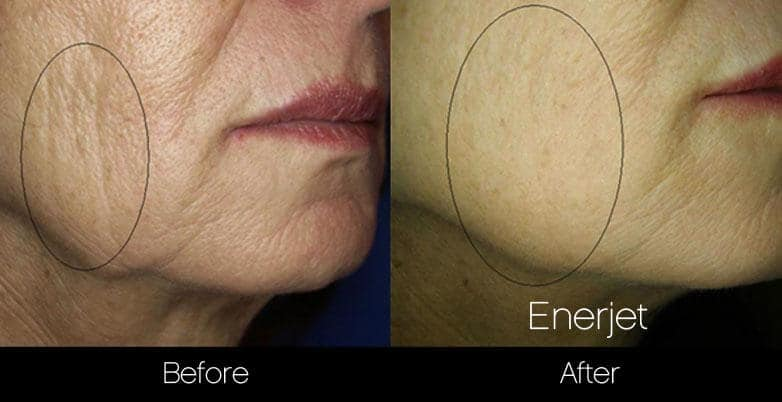 EnerJet Treatment - Before and After Gallery – Photo 6