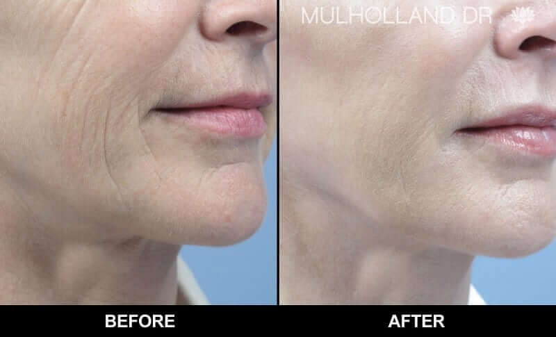 Non-Surgical Facelift - Before and After Gallery – Photo 6