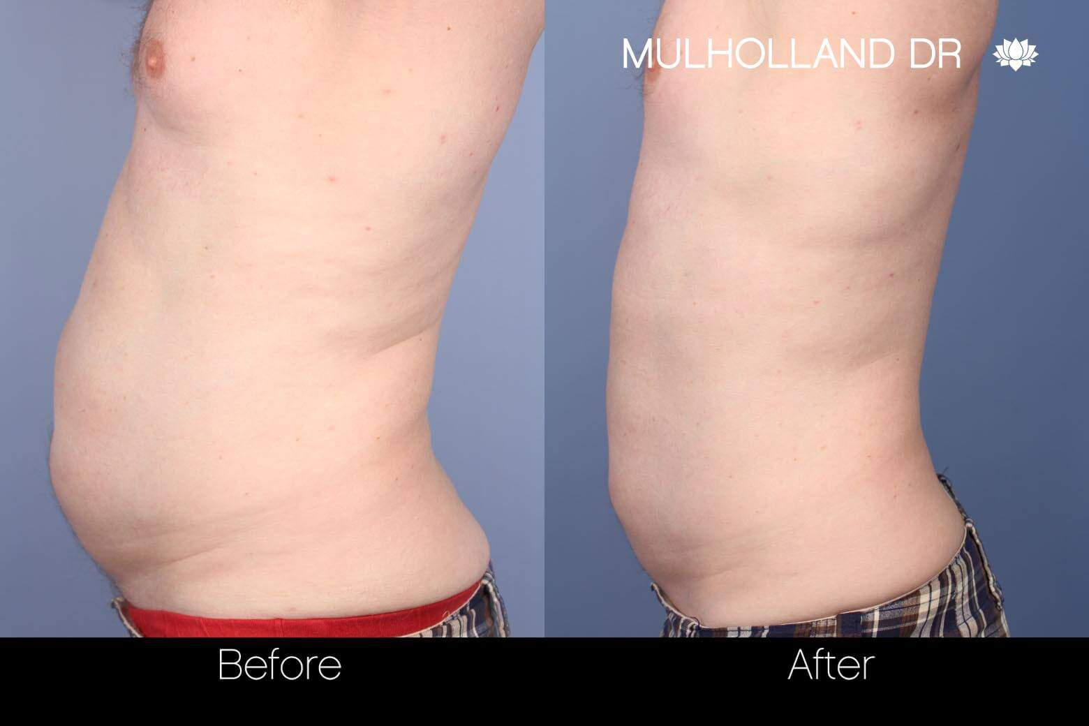 SculpSure - Before and After Gallery – Photo 6
