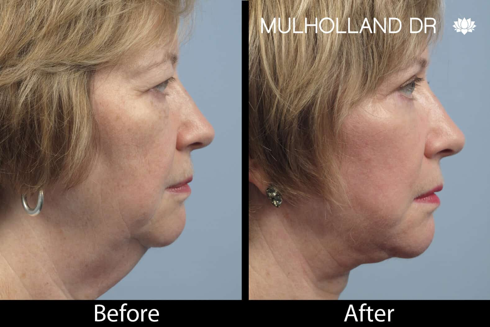 Non-Surgical Facelift - Before and After Gallery – Photo 7
