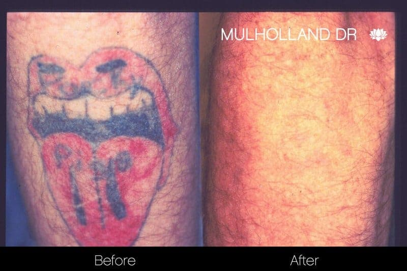 Laser Tattoo Removal - Before and After Gallery – Photo 7
