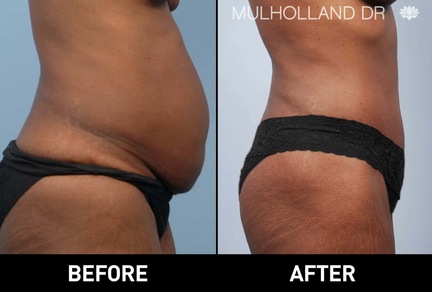BodyTite Liposuction - Before and After Gallery – Photo 8