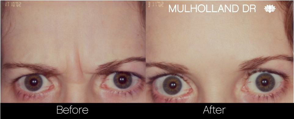 Botox Injectable - Before and After Gallery – Photo 8