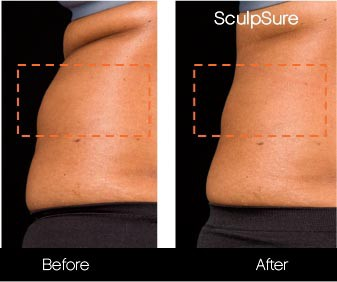 SculpSure - Before and After Gallery – Photo 10