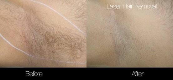 Laser Hair Removal - Patient Before and After Gallery – Photo 8