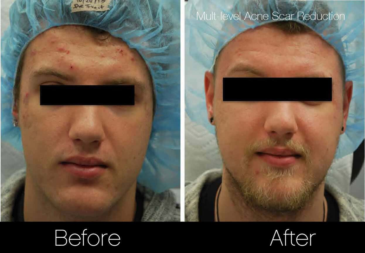 Acne Scar Treatments - Before and After Gallery – Photo 9