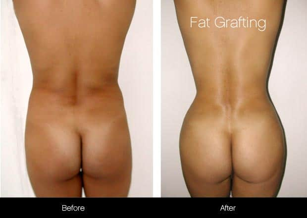 Brazilian Butt Lift - Before and After Gallery – Photo 8