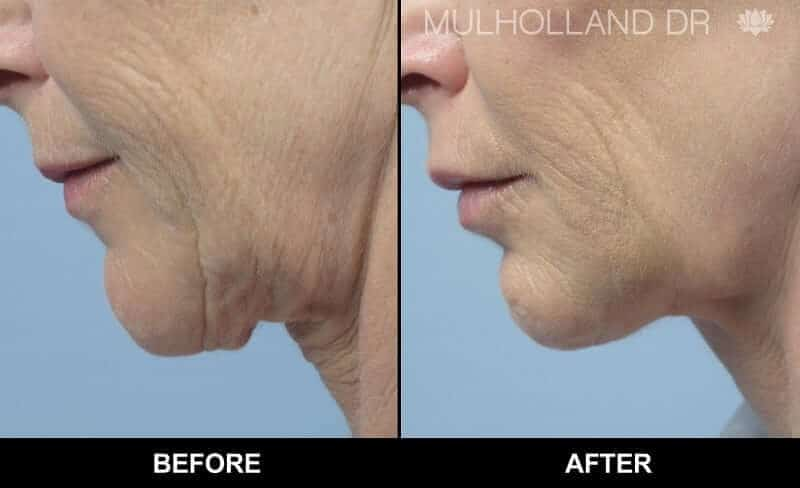 Non-Surgical Facelift - Before and After Gallery – Photo 9