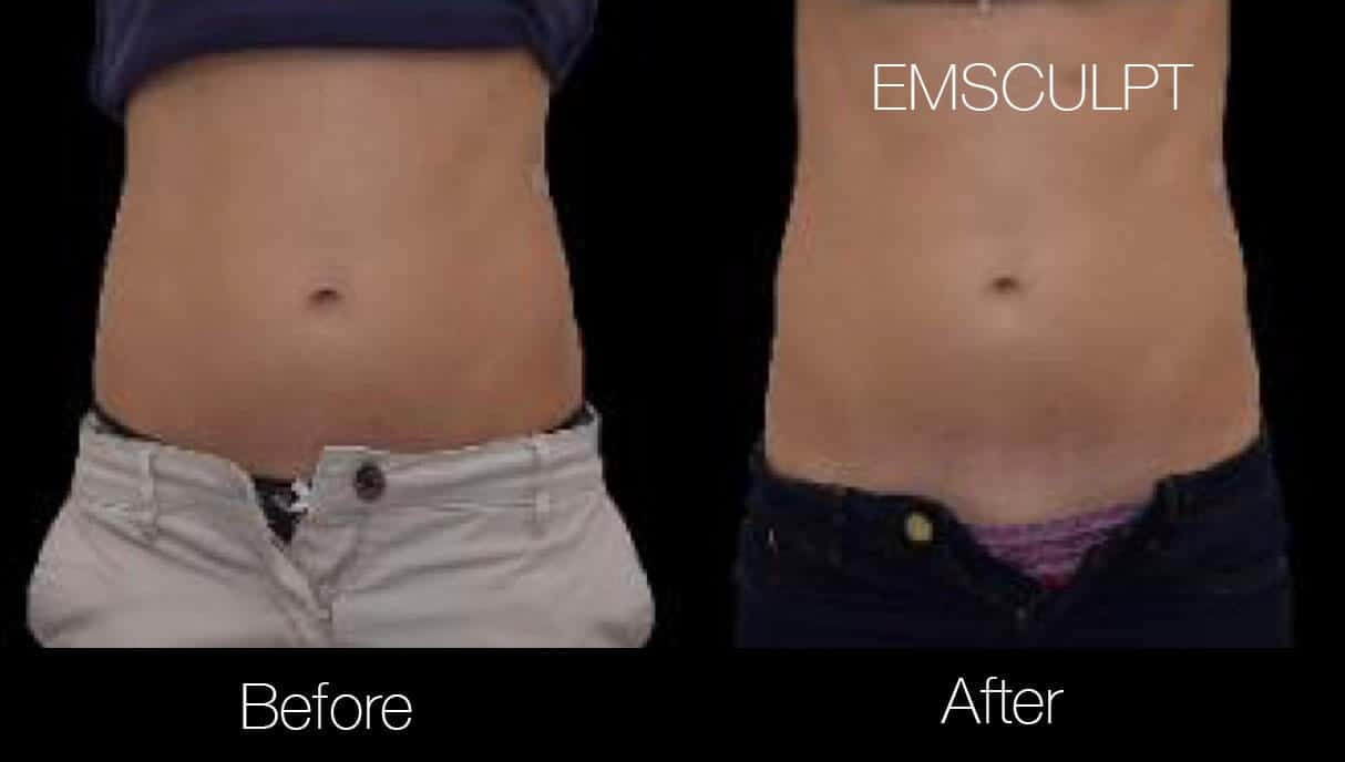Emsculpt - Before and After Gallery – Photo 9