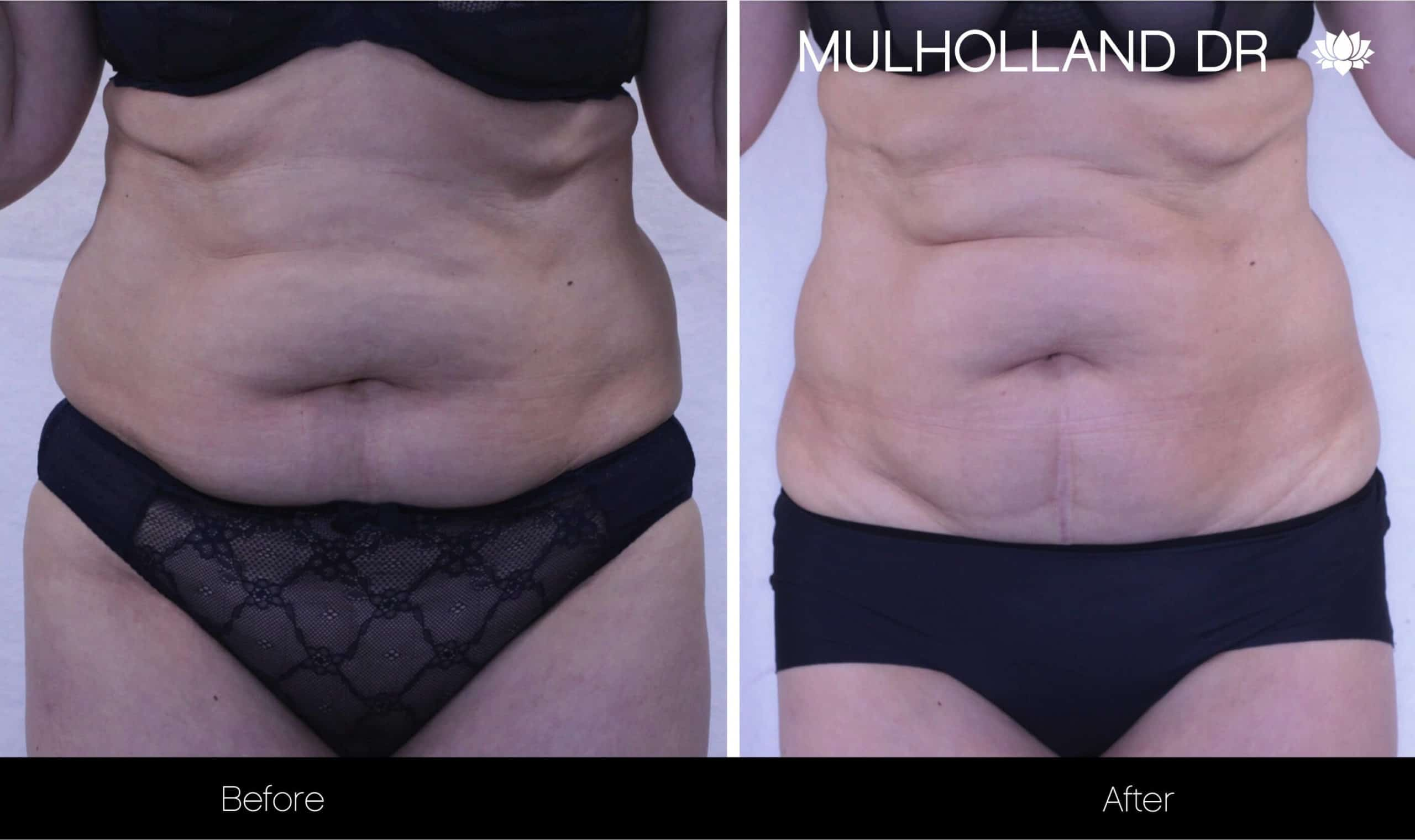 Non-Surgical Liposuction - Before and After Gallery – Photo 9