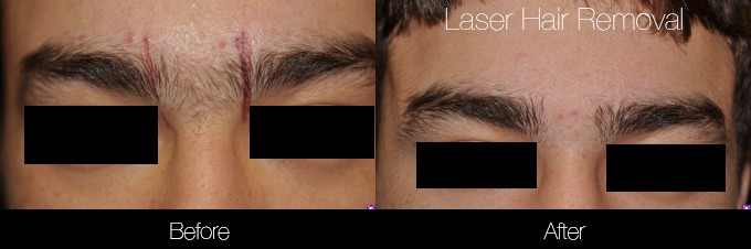Laser Hair Removal - Patient Before and After Gallery – Photo 9