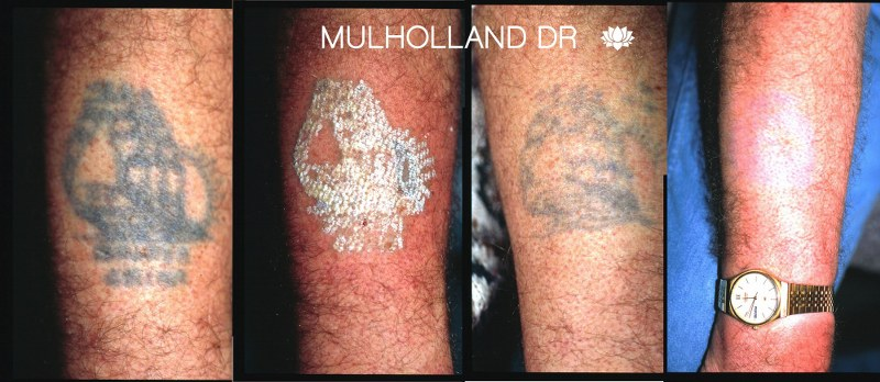 Laser Tattoo Removal - Before and After Gallery – Photo 9