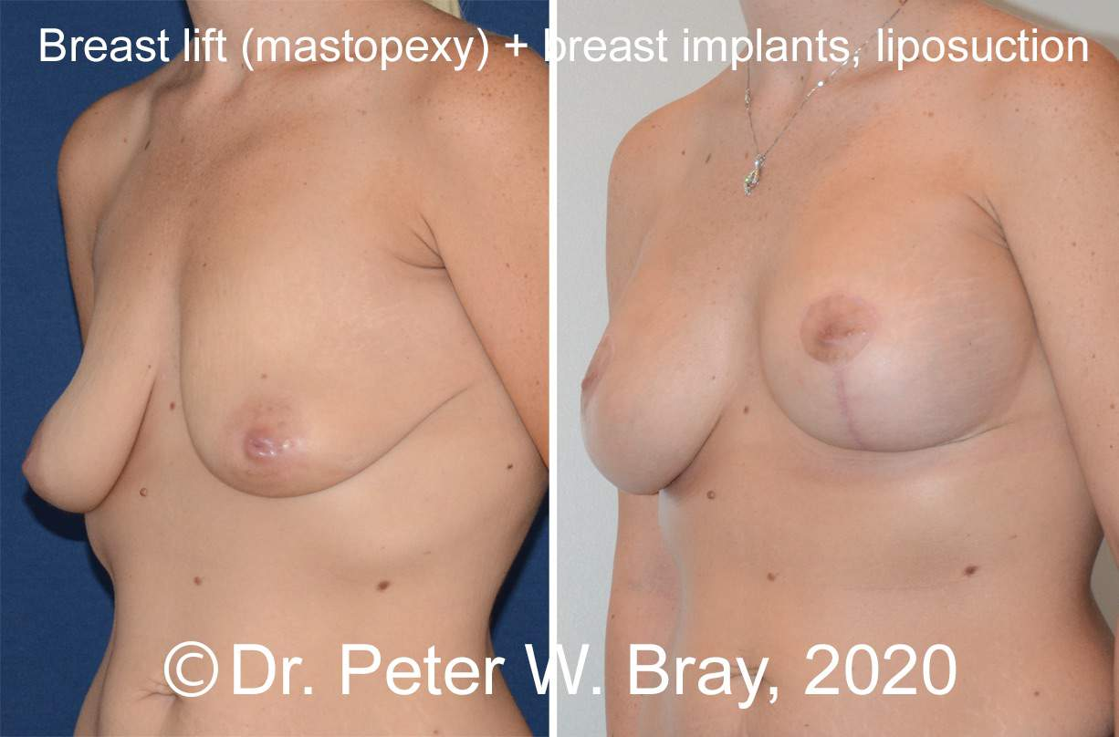 Breast Lift - Before and After Gallery – Photo 10