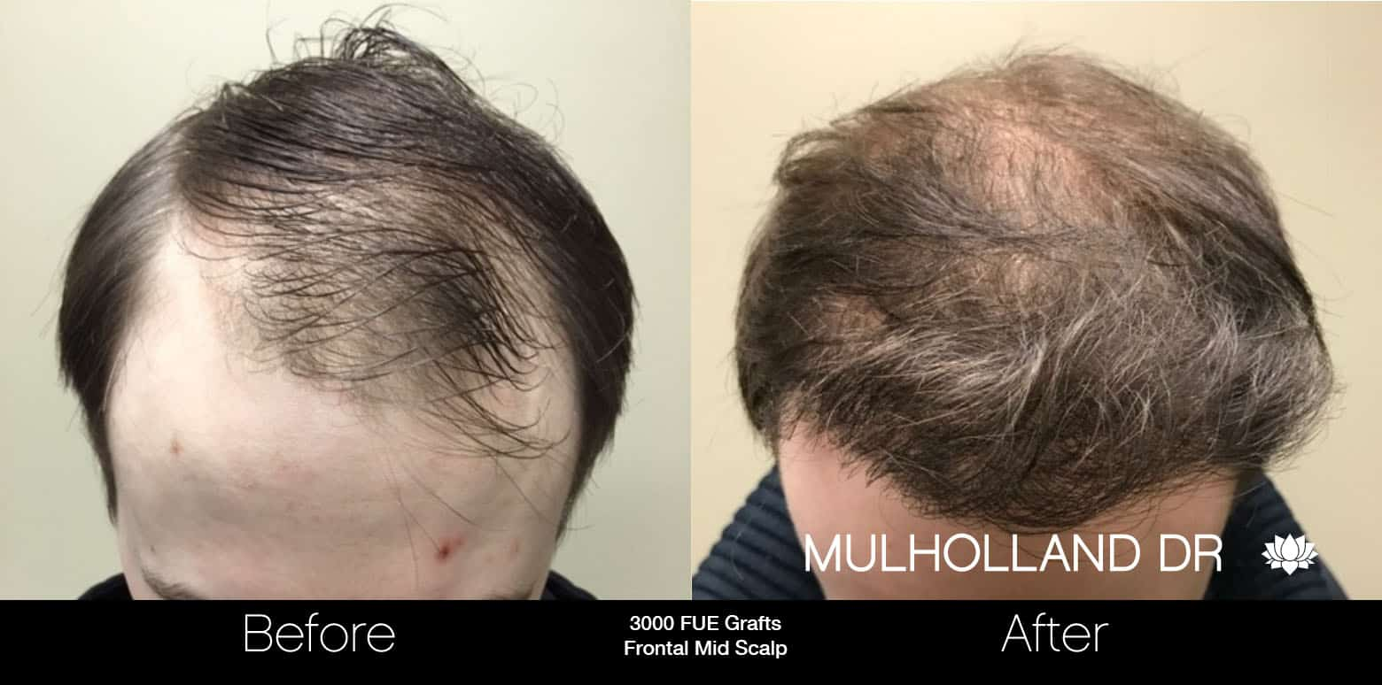 FUE Hair Male - Before and After Gallery – Photo 14