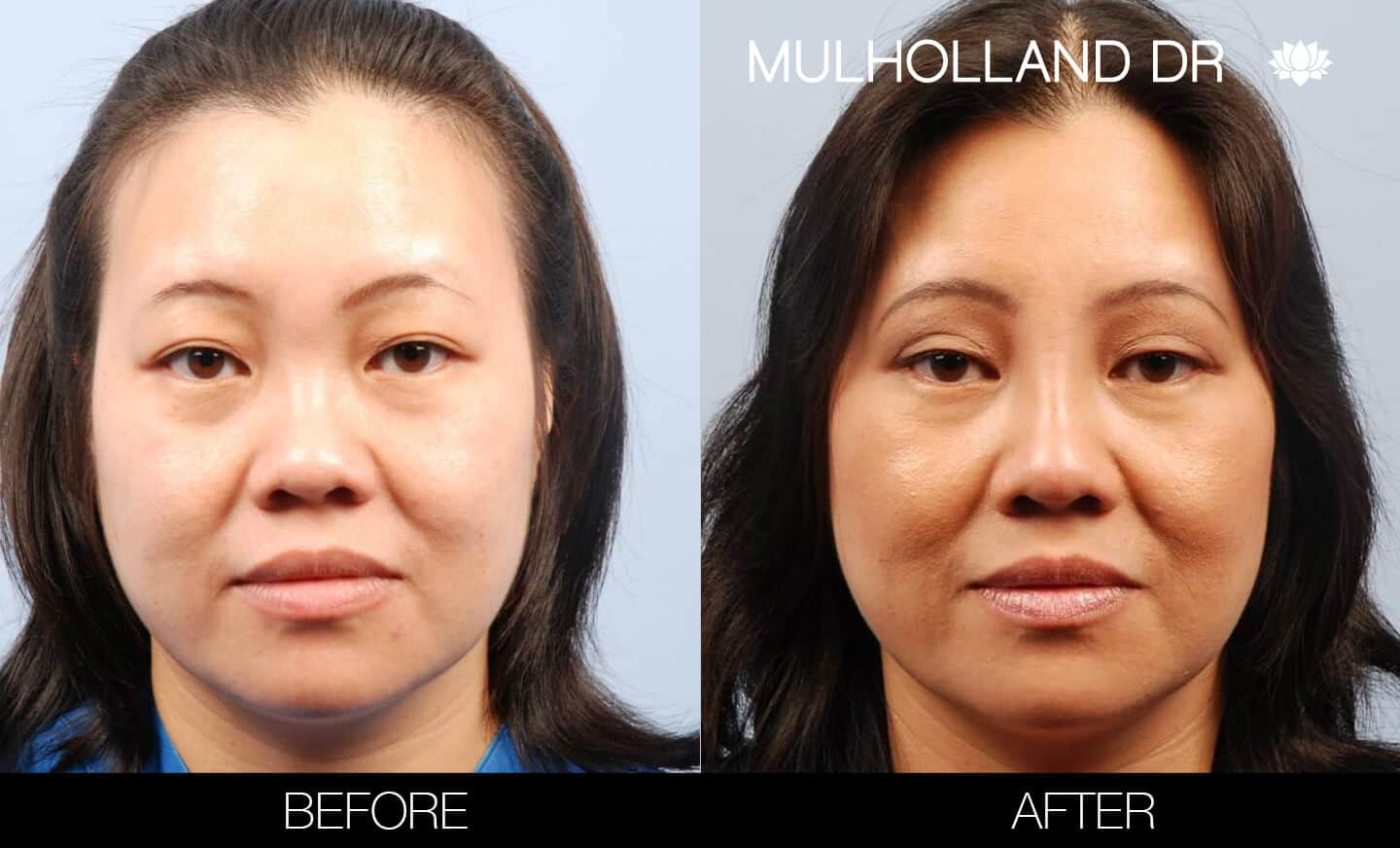 Asian Blepharoplasty - Before and After Gallery – Photo 1