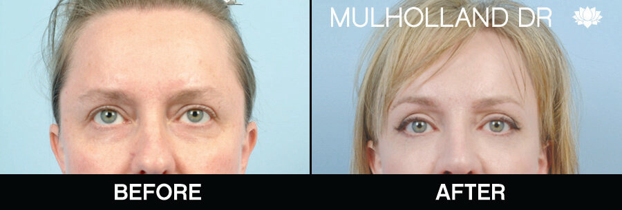 Brow Lift - Before and After Gallery – Photo 1