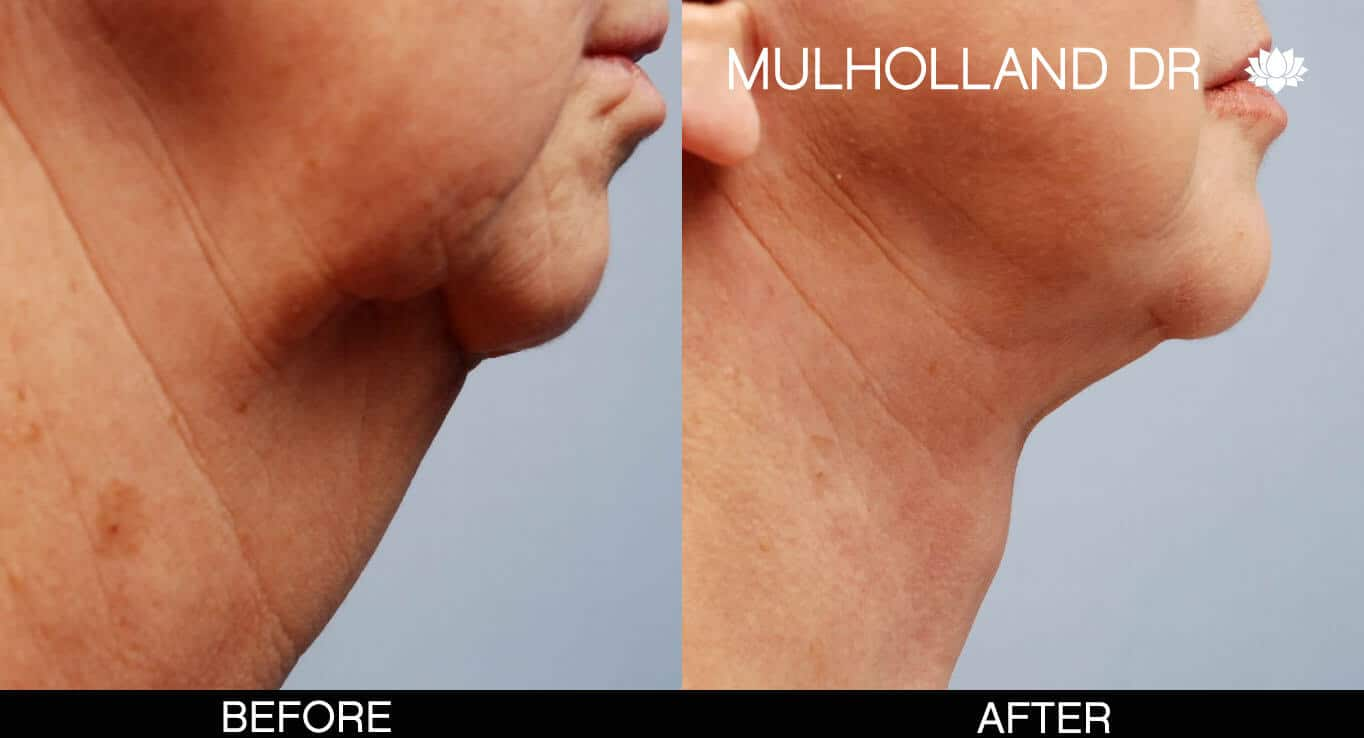 Neck Lift- Before and After Gallery – Photo 1