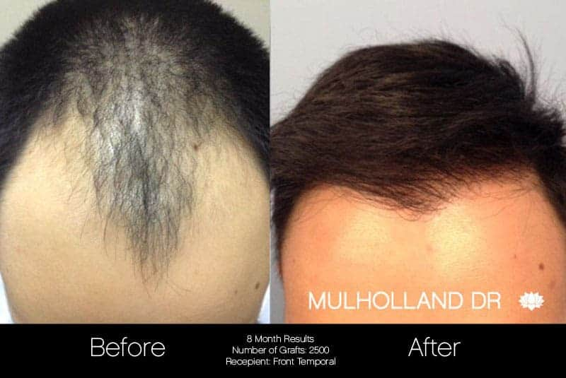 FUE Hair Male - Before and After Gallery – Photo 1