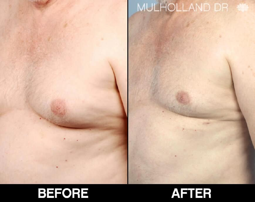 Gynecomastia Surgery (Male Breast Reduction) - Before and After Gallery – Photo 1
