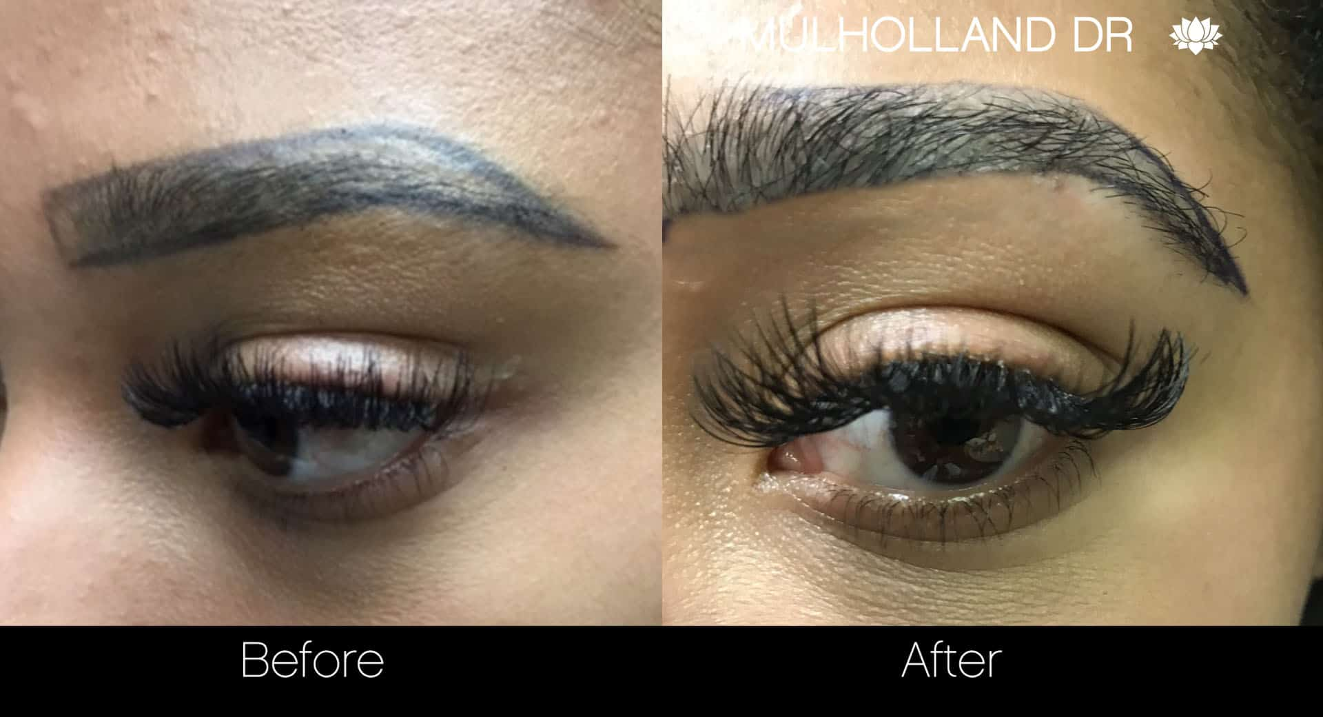 Eyebrows FUE - Before and After Gallery – Photo 2
