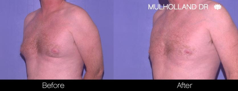 Gynecomastia Surgery (Male Breast Reduction) - Before and After Gallery – Photo 2