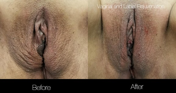 Vaginal Rejuvenation - Before and After Gallery – Photo 3