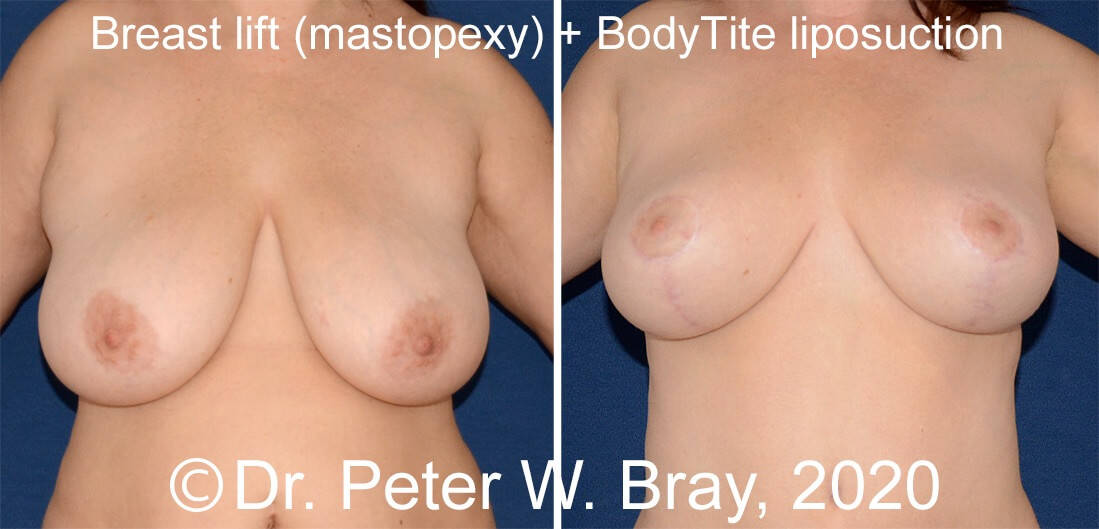 Breast Reduction - Before and After Gallery – Photo 5