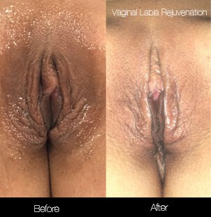 Vaginal Rejuvenation - Before and After Gallery – Photo 4