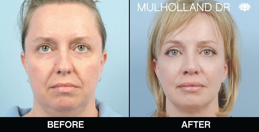 Neck Lift- Before and After Gallery – Photo 7