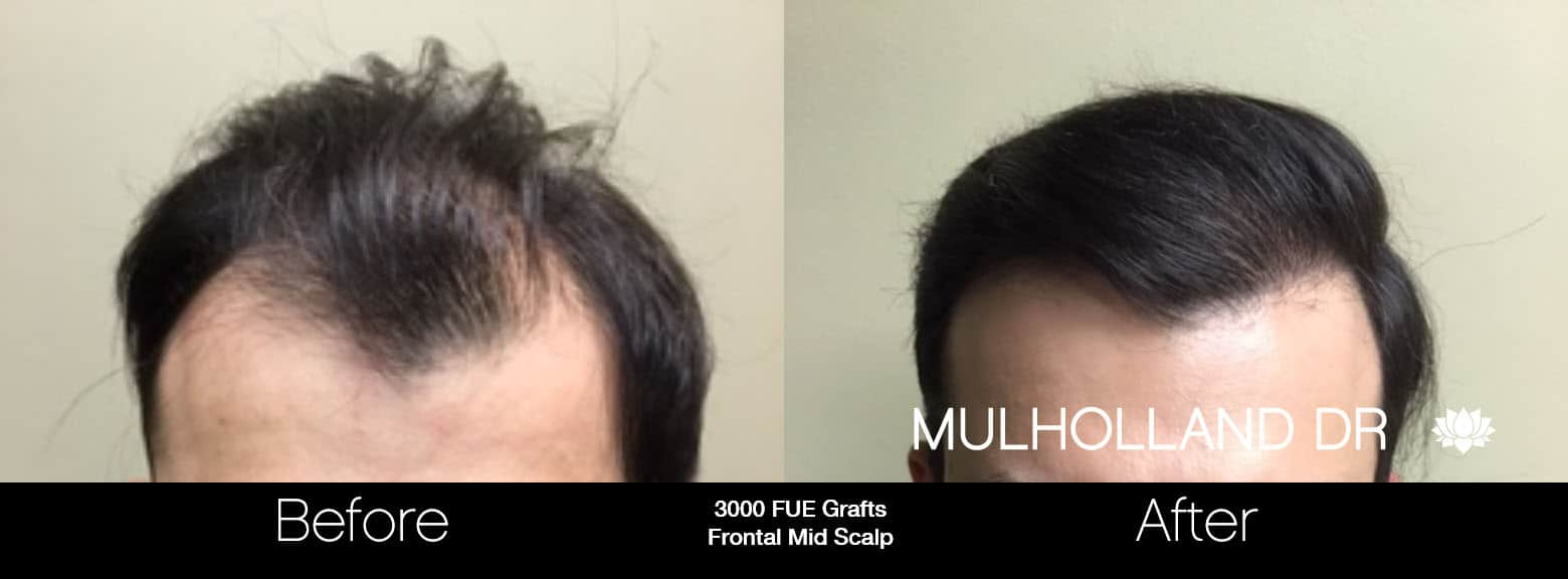 FUE Hair Male - Before and After Gallery – Photo 8